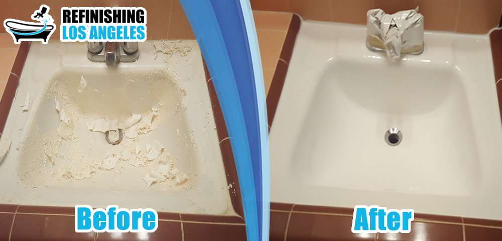 sink before after resurfacing